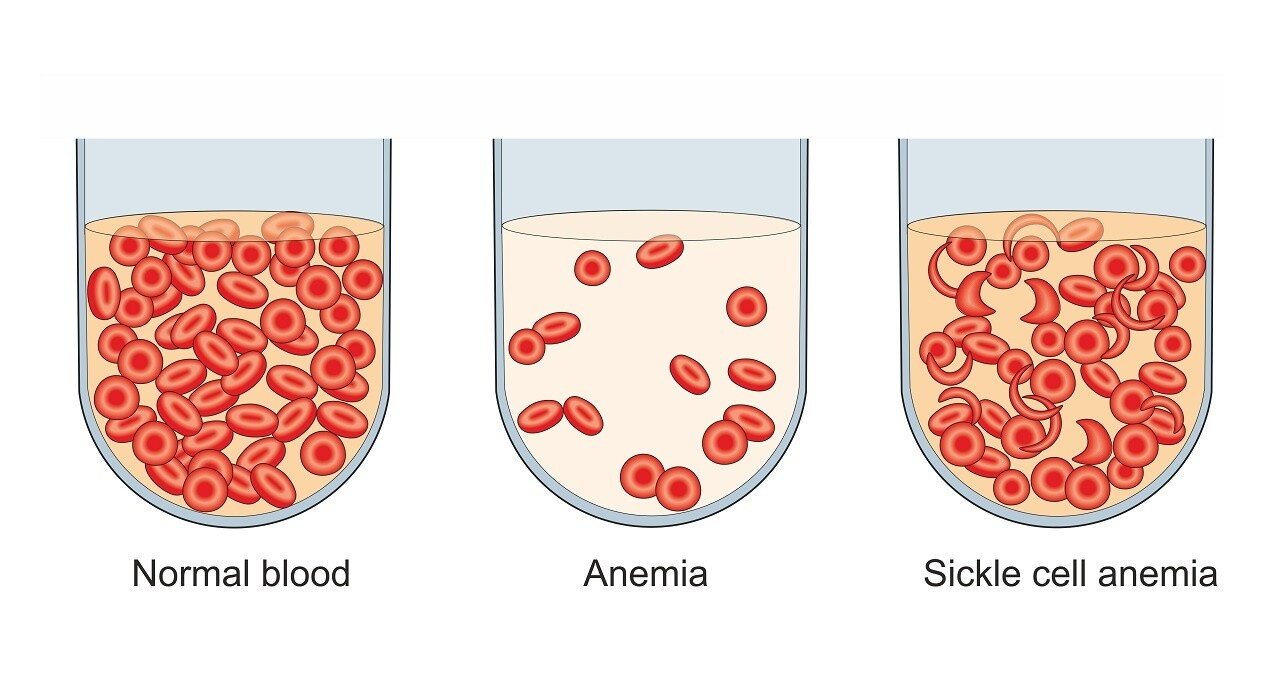 Anemia is a decrease in the number of red blood cells in the blood. The causes may be blood loss, decreased red blood cell production or inheritable sickle cell disease. 10