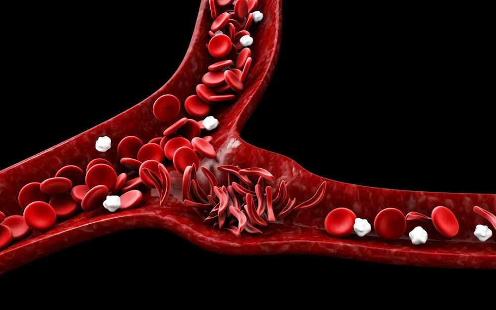 Prevention and treatment of sickle cell disease
