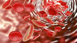 Sickle Cell Disease What you need to know